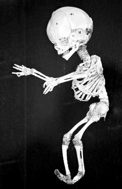 nature-skeleton2
